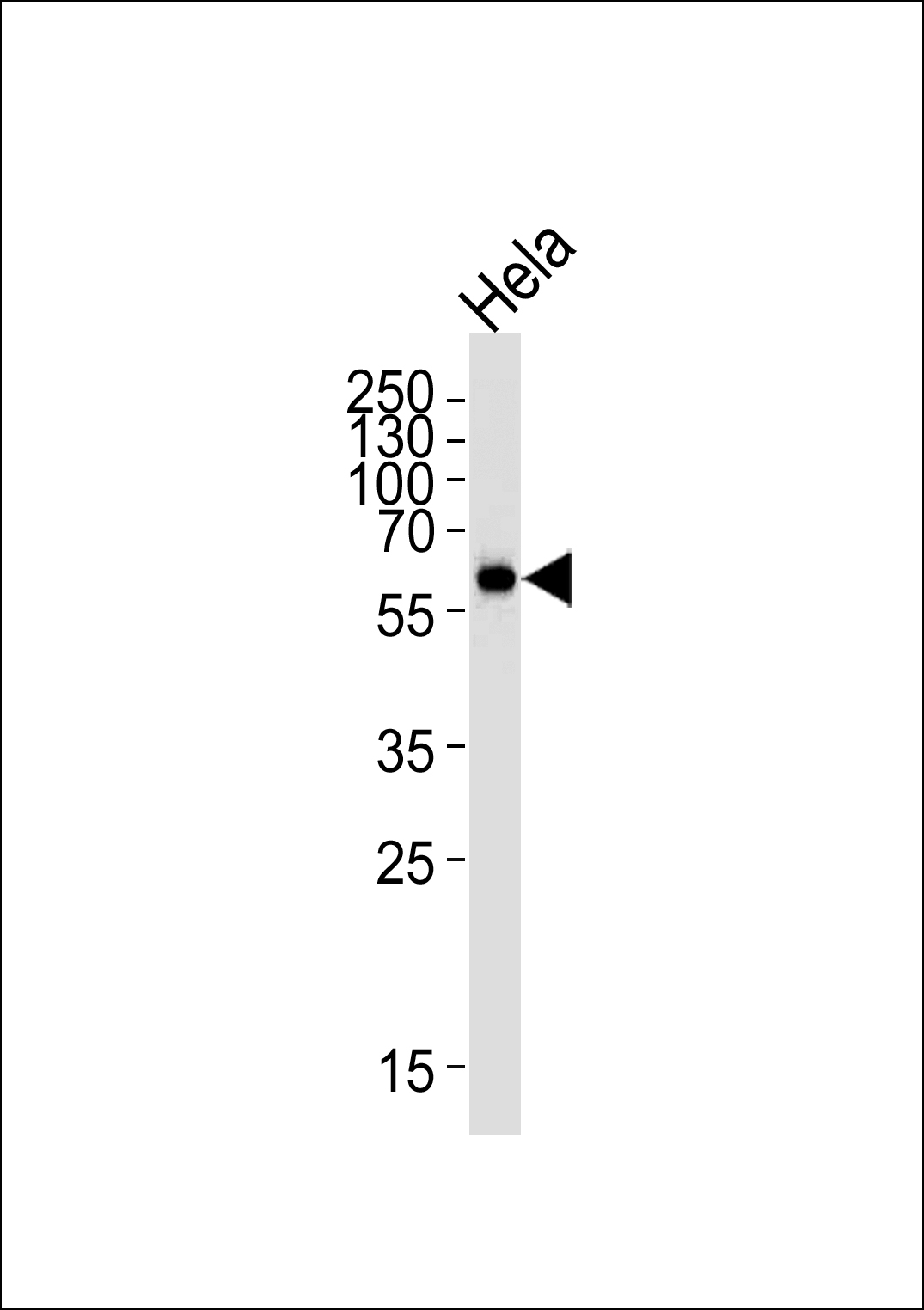 1 - HDAC2 Antibody (Center) AM2246b
