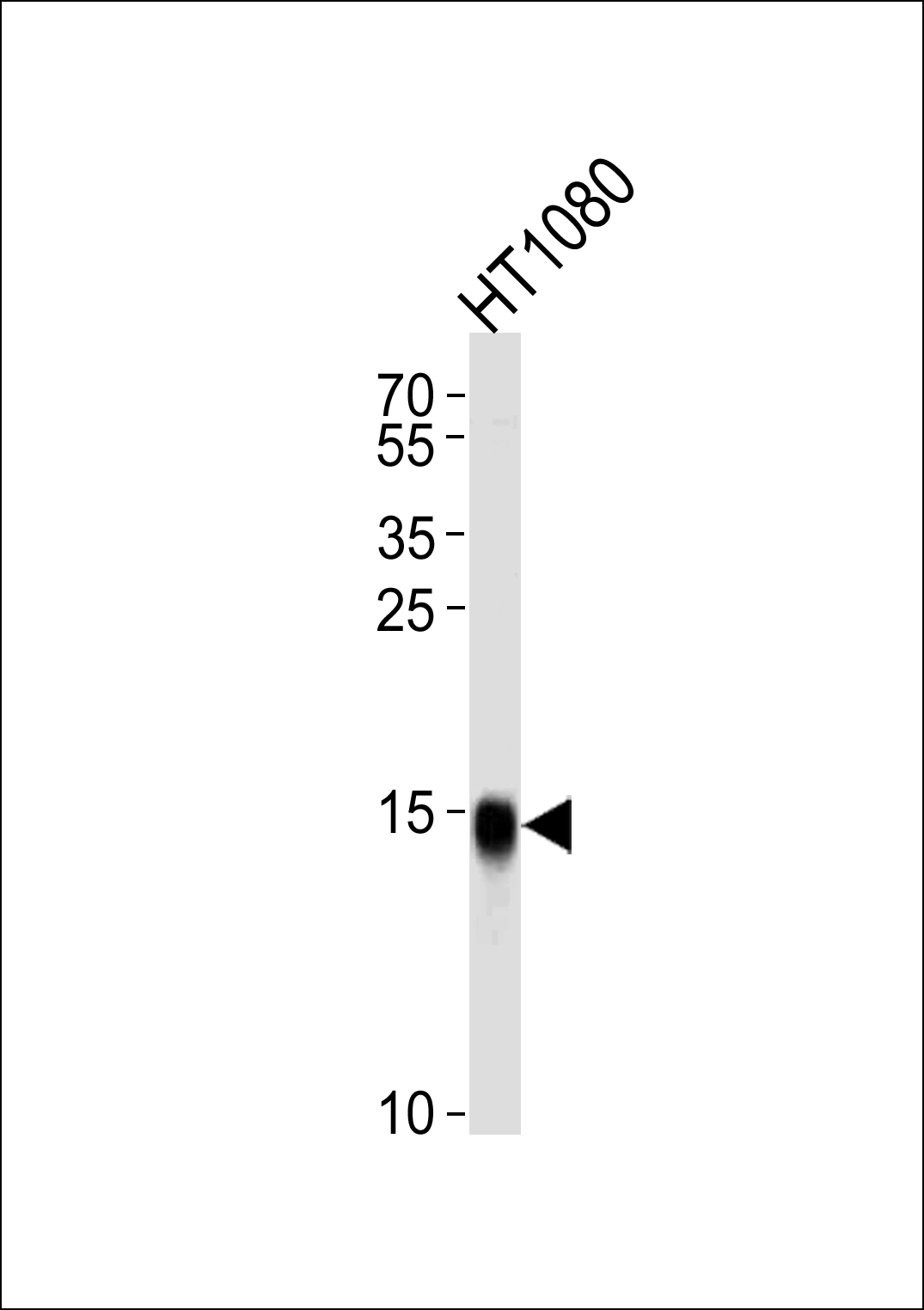 1 - Interferon-inducible protein (IFITM3) Antibody (N-term) AP1153a