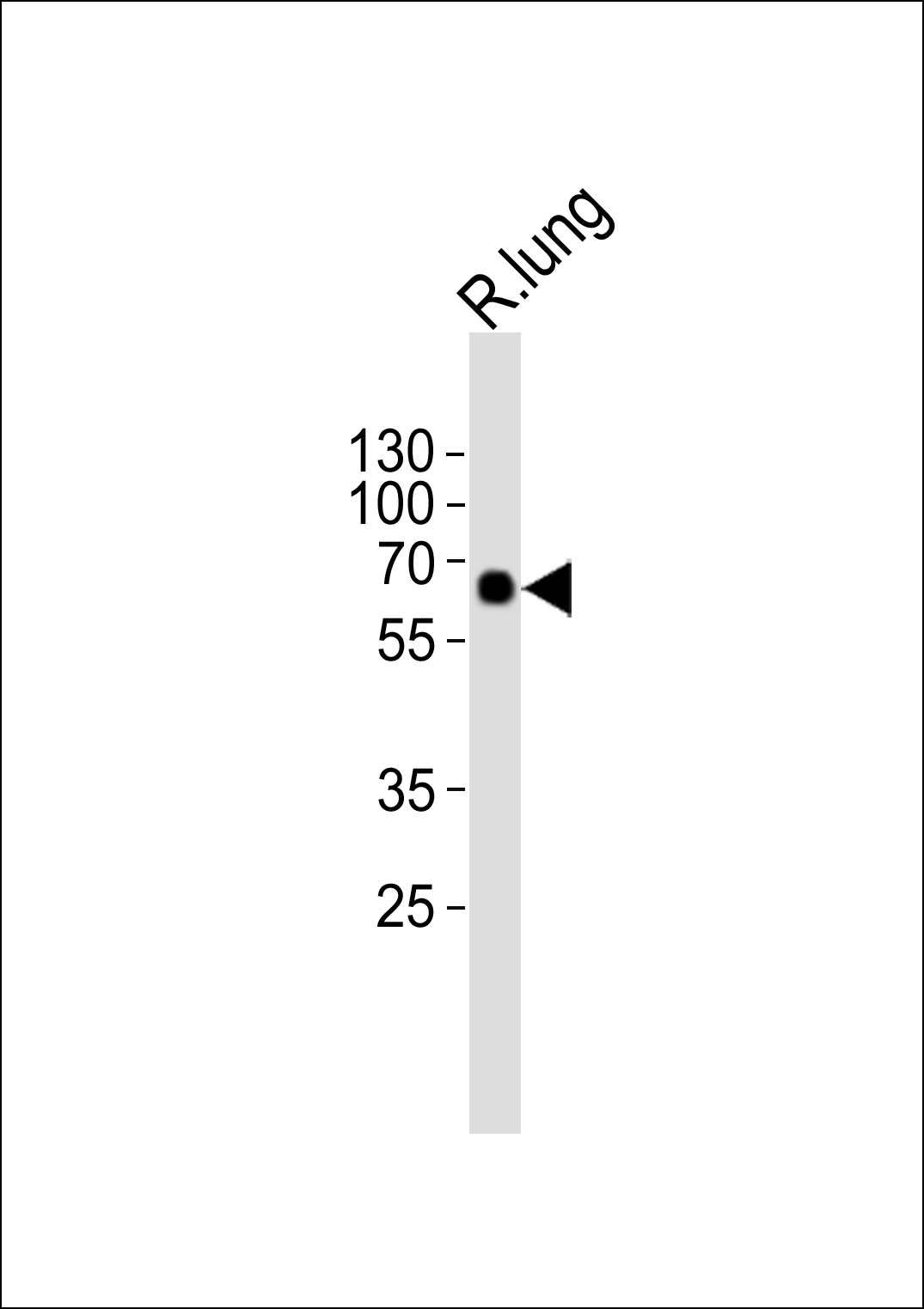 1 - SMAD1 Antibody (Center) AP21003a