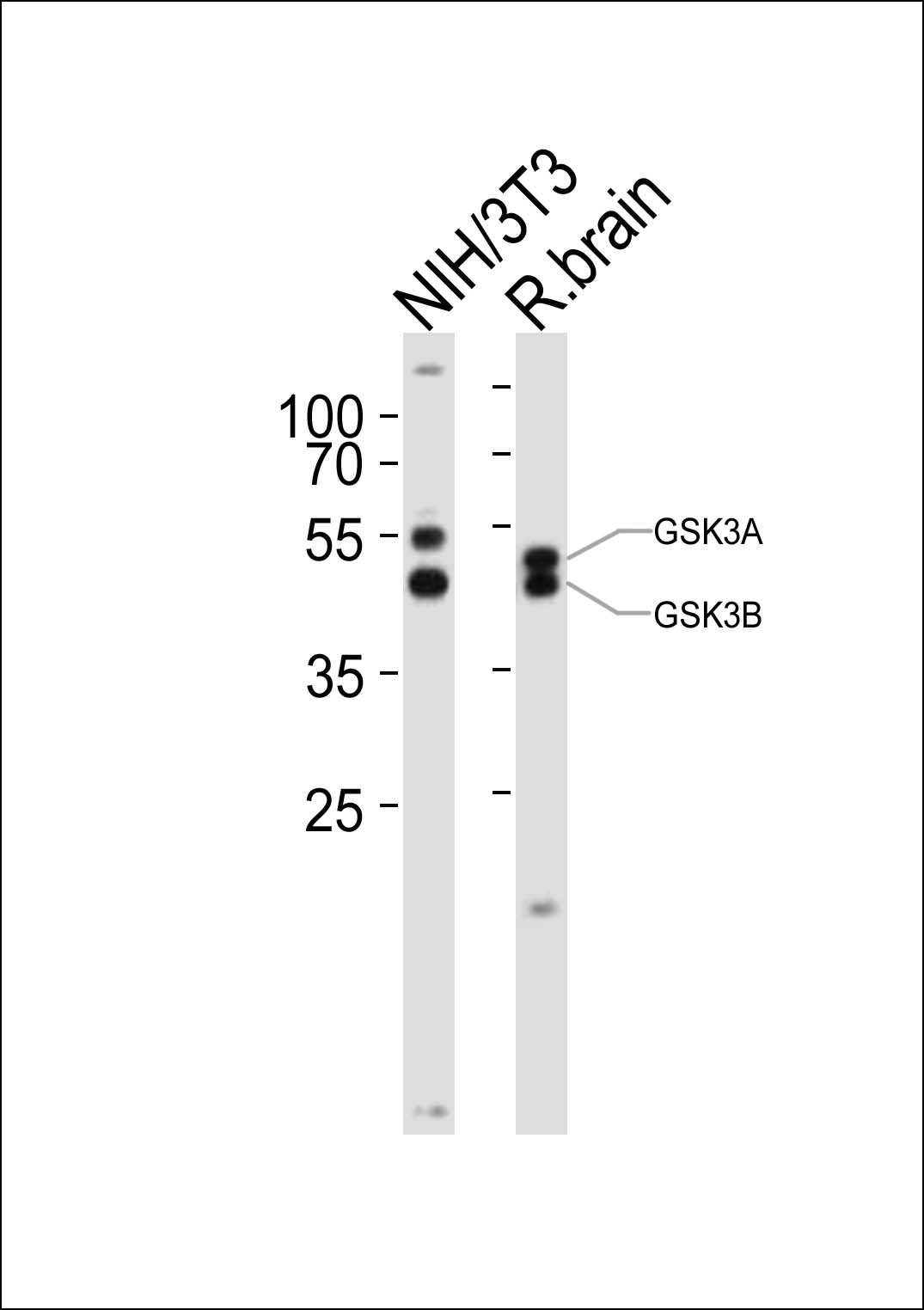 1 - GSK3A Antibody (Center) AP21095a