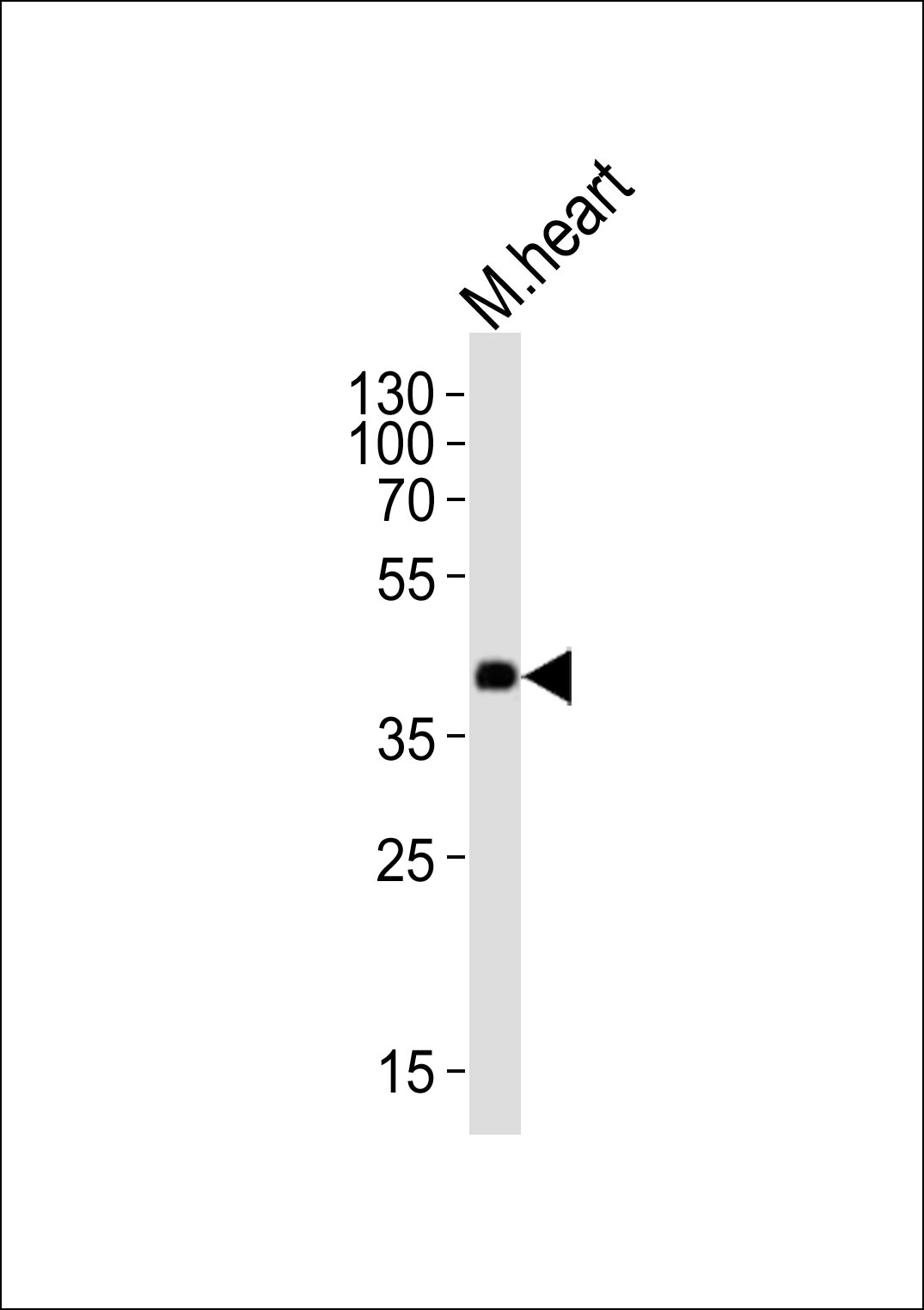 1 - Mouse Dnmt3l Antibody (Center) AP21127a