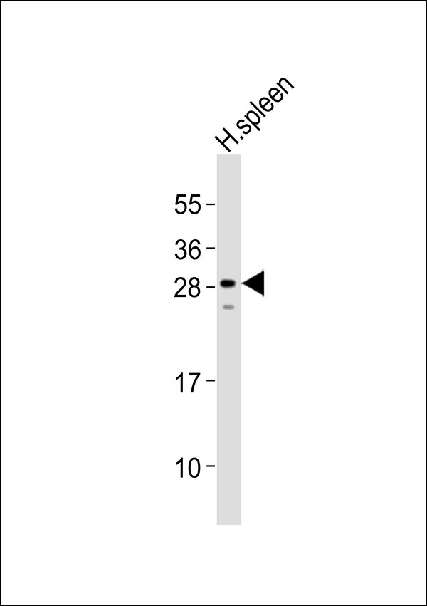 1 - Carbonic Anhydrase 1 Antibody AP51028