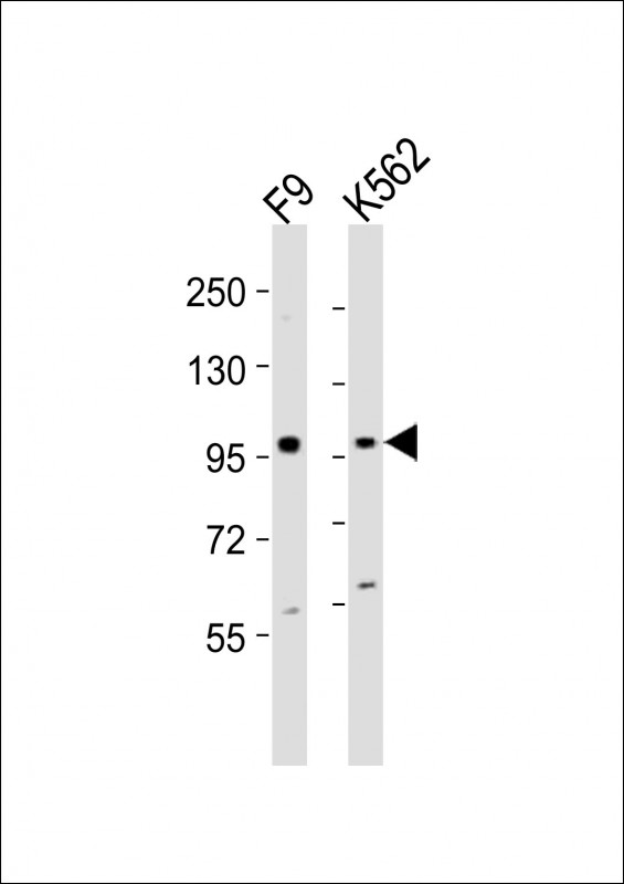 1 - (Mouse) Ezh2 Antibody (Center) AP21367c
