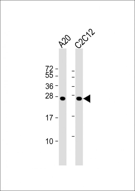 1 - mouse BAD Antibody (Center S112/S111/Y113) AP18695c