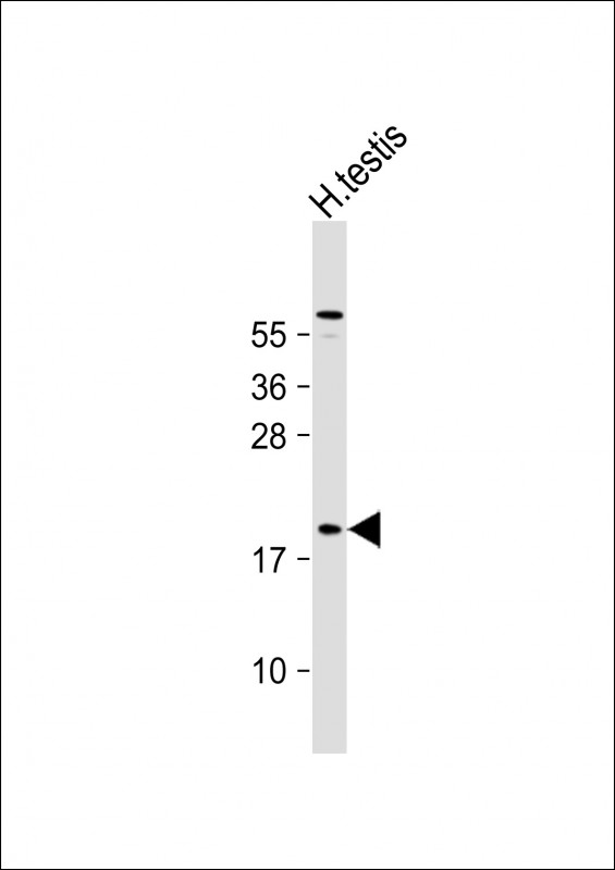 1 - CT45A Antibody (Center) AP11883c