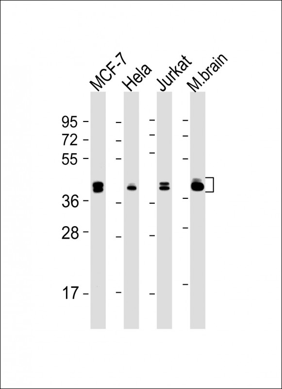 1 - MAPK3/1 Antibody (Center) AM8605b